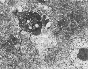 肝细胞凋落小体(左上)