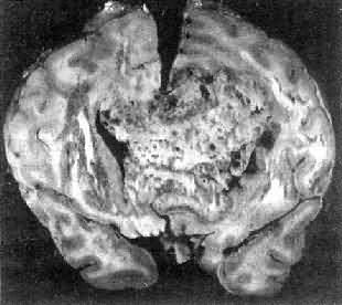 多形性胶质母细胞瘤