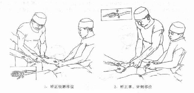 桡骨下端伸直型骨折复位情况