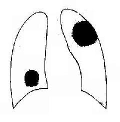 肺内肿块影