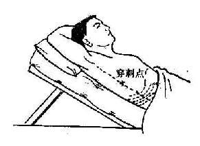 卧位时胸腔穿刺点