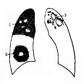 空洞的三种形态