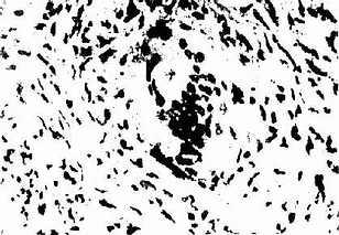结节病肉芽肿巨细胞内的星状小体