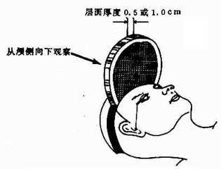 頭部CT橫斷層面