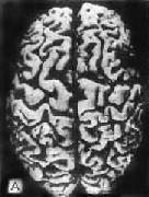 初老期痴呆的腦 A