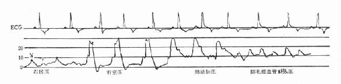 漂浮导管测得右侧心房、心室、肺动脉及肺毛细血管楔压