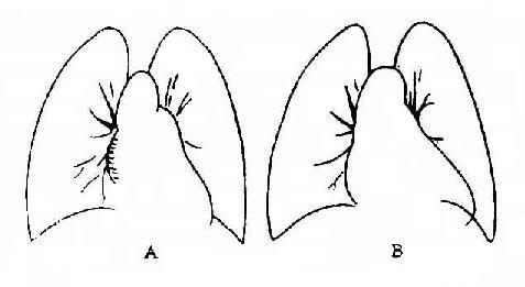 二尖瓣主动脉瓣联合瓣膜病