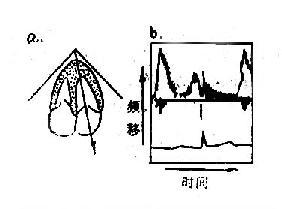 超声脉冲多普勒显示示意图