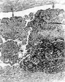 管腔內血栓的放大,主要為白色血栓(↑);右下為纖維素