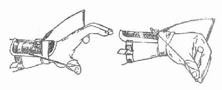 悬吊弹簧夹板