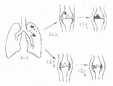 骨关节结核的病理发展过程