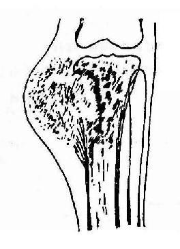 胫骨上端骨肉瘤(混合型)