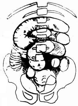 肠梗阻(仰卧位)胀气肠管呈层状排列