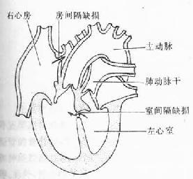 主动脉和肺动脉错位