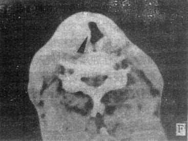 鼻窦、鼻咽和喉部CT扫描