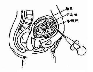 羊膜穿刺抽取羊水示注射器穿越腹壁到羊腔抽取羊水