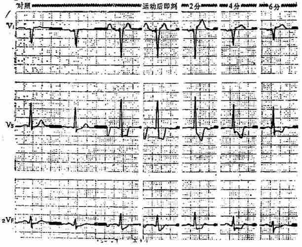 运动试验阳性心电图