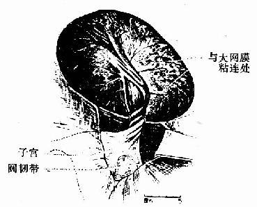 卵巢囊肺蒂扭转