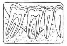 牙槽骨Ⅲ吸收