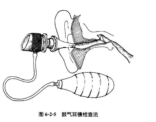鼓气耳镜检查.jpg