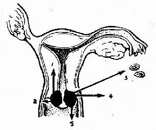 宫颈癌转移途径