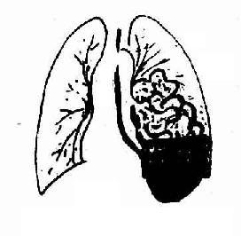 左膈疝小肠疝入胸腔