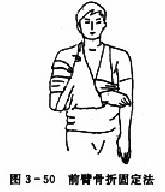 前臂骨折固定法