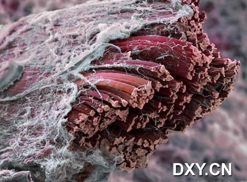 肌肉组织的横断面,四周被充当结缔组织的细胞外组织包围。每一个肌肉纤维通过结缔组织连接在一起并形成完整的肌肉
