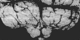小脑扁桃体疝