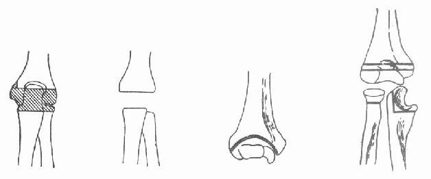 肘关节结核病灶清除和关节切除术