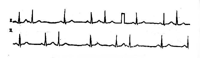 房性期前收缩形成三联律心电图一例