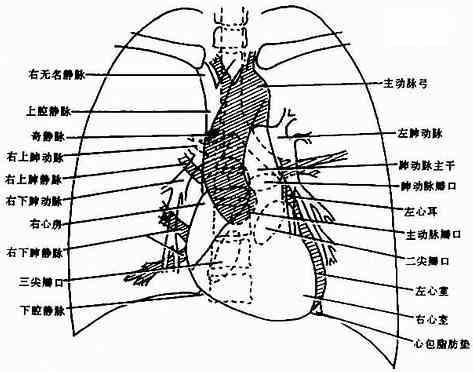 後前位正常心、大血管影像解剖示意圖