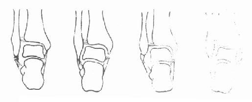 踝部韧带断裂与撕脱骨折