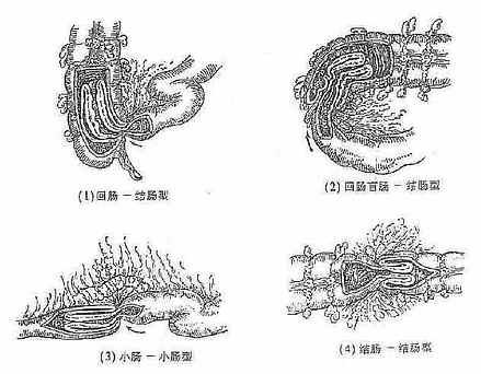 肠套迭的几种类型