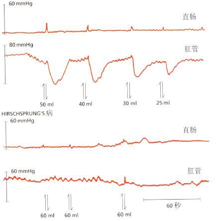Hirschsprung病患者与正常人肛管压力对直肠扩张反应曲线