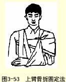無夾板前臂上臂骨折固定法