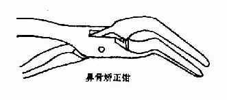 闭合性鼻骨骨折的复位器械