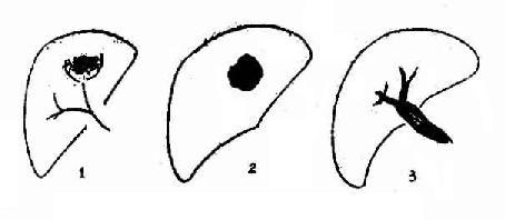 肝癌(肝动脉造影示意图)