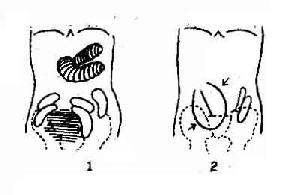 绞窄性小肠梗阻的X线征象