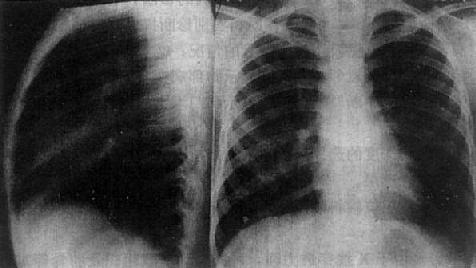 正常胸部侧位、后前位片