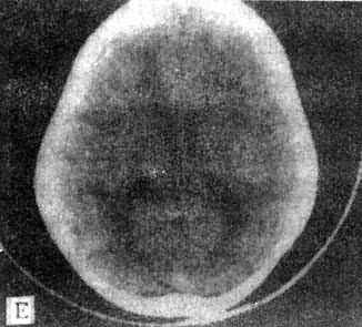 正常頭部CT掃描