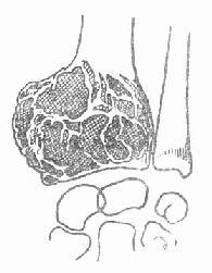 桡骨下端巨细胞瘤
