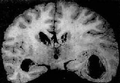 慢性脑脓肿