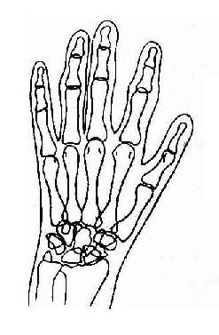 手及腕部类风湿性关节炎