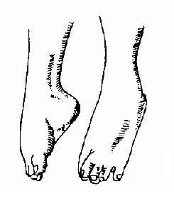 手足搐搦的痙攣