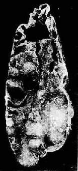 卵巢粘液性囊腺瘤