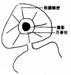 十二指肠球部溃疡(龛影)