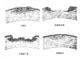 角膜溃疡进行性演变