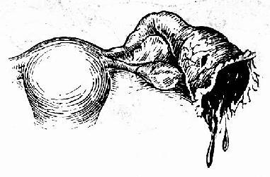 輸卵管妊娠流產