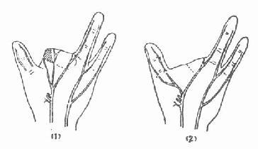 转移手指残余神经,吻合拇指两神经